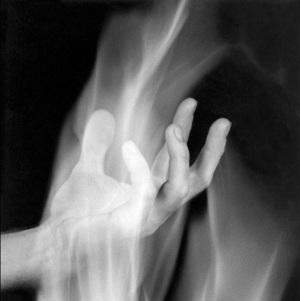 1-robert-mapplethorpe-hand-in-fire-1985